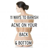 11 lời khuyên trị mụn ở lưng và mông